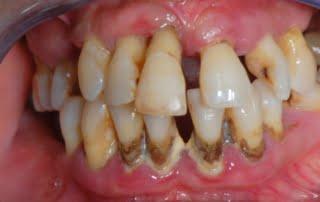 dinti mobili, parodontoza