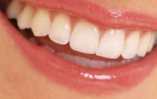 poza-proteza-totala-dentara