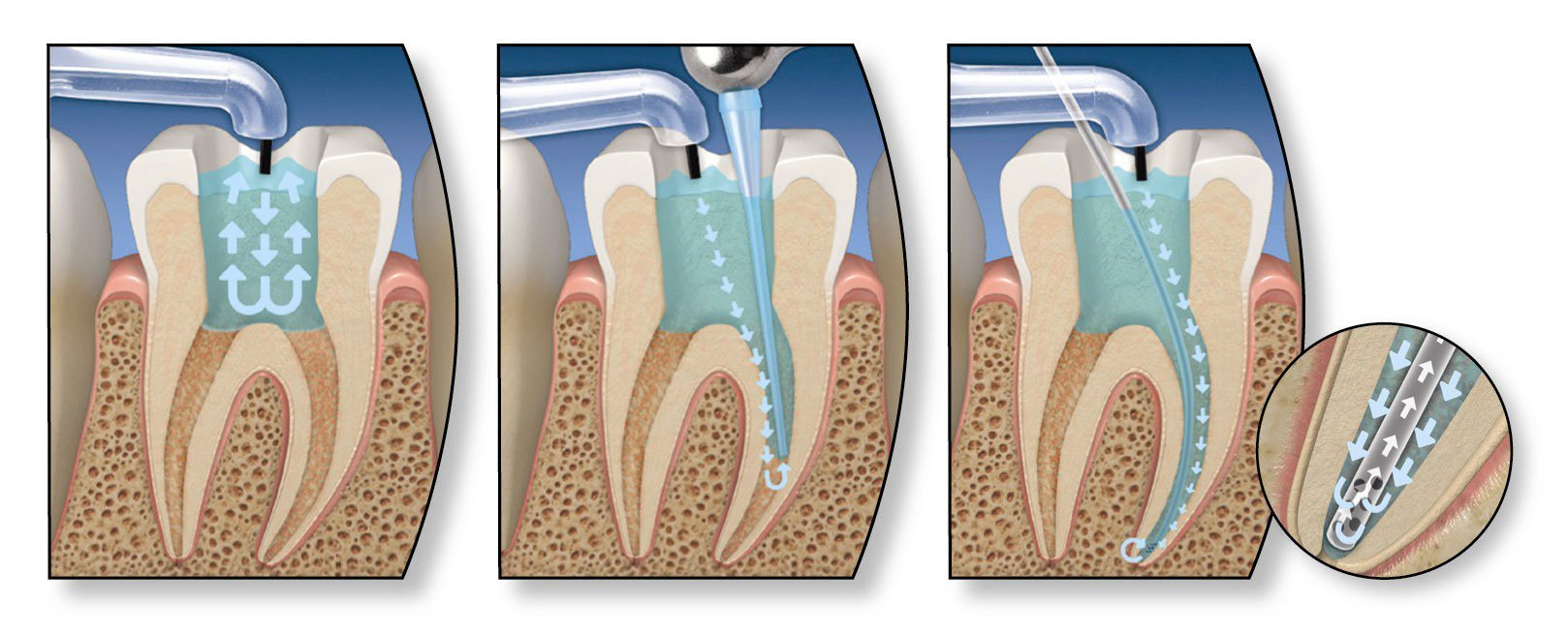 tratament-canal-endodontie