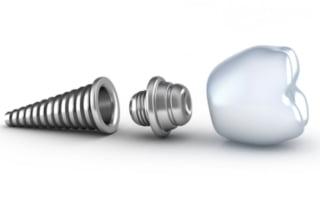 implanturi-dentare