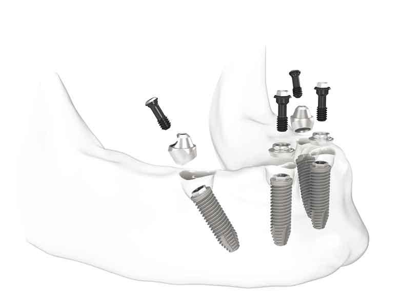 implant-dentar-jollydent