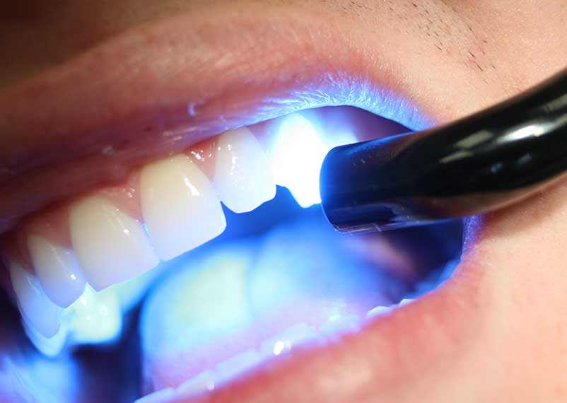 odontoterapie-laser-jollydent