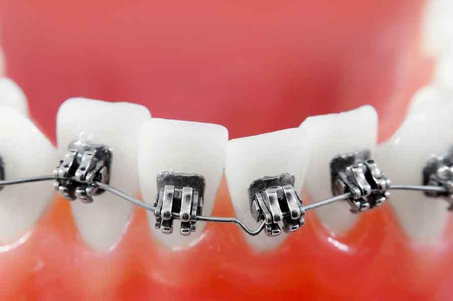 ortodontie-jollydent