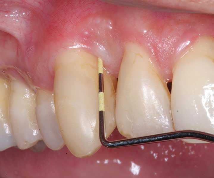 parodontologie-jollydent