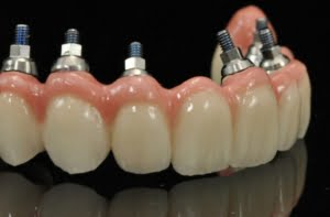 proteza dentara permanenta