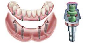 proteza pe implanturi: locator F-TX