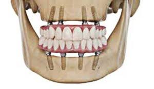 proteza-pe-implanturi-overdenture