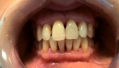 bolile-parodontale-parodontita