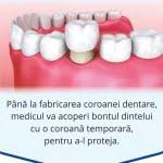 etape-realizare-coroana-dentara-bucuresti