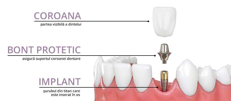 componente implant dentar (wide ratio)