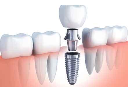 implant-dentar-bucuresti-gingie-implant-bont-coroana