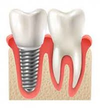 implant-dentar-osteointegrare